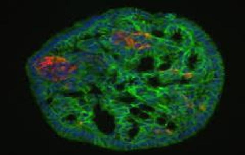کشف زیر نوع های مختلف سلول های بتا تولید کننده انسولین