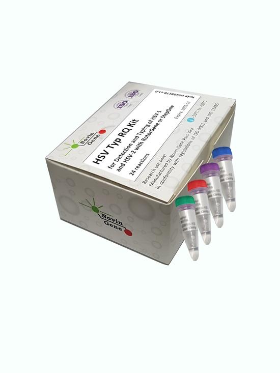 کیت ریل تایم HSV 1/2 RQ (تشخیص و کمیت سنجی ویروس هرپس سیمپلکس)