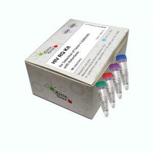 HIV-1 Detection and Quantitation kit