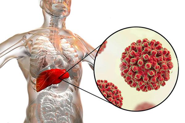 شناسایی و سنجش کمی ویروس هپاتیت ب (HBV)